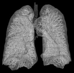 menschliche_lunge