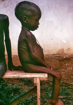 hungry_child_biafra